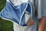 broken-arm